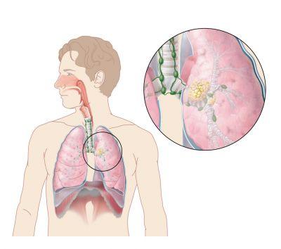 symptomen kanker