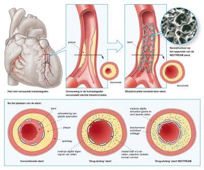 waarde cholesterol